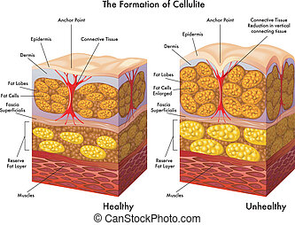 Cellulite.