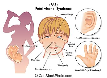 Fieberalkohol-Syndrom.
