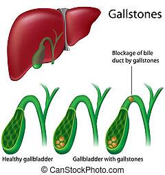 Gallensteine.