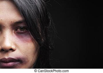 Häusliche Gewaltopfer