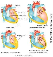 Krankheiten des Herzmuskels.