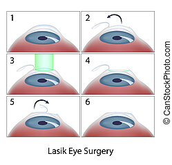 Lasik Augenoperation, Eps10
