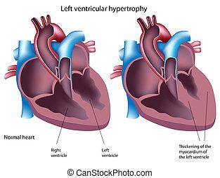 Linke ventrikuläre Hypertrophie, Eps 8.