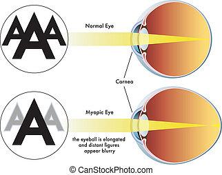Myopia.
