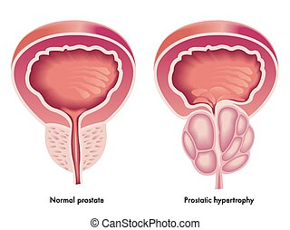 Prostata Hypertrophie.