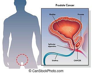 Prostatakrebs.