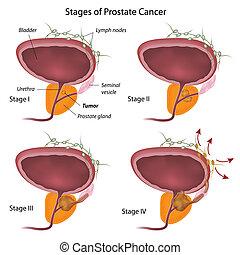 Stadium von Prostatakrebs, Eps10