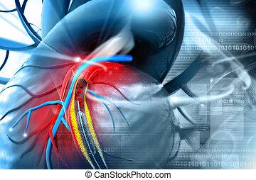 stent, balloon, plazierung, verfahren, angioplasty